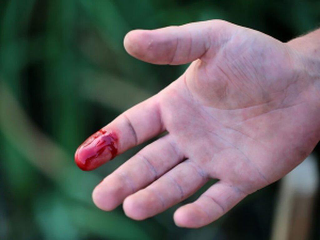 Nằm mơ thấy đứt tay chảy máu đánh con gì